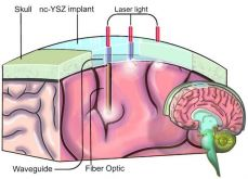 Transparent Skull Implant Could Replace Craniotomy